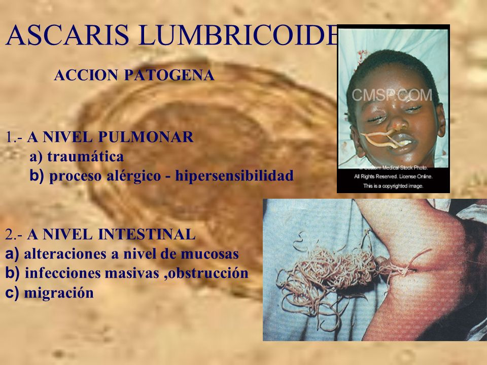 ASCARIS LUMBRICOIDES. ACCION PATOGENA 1