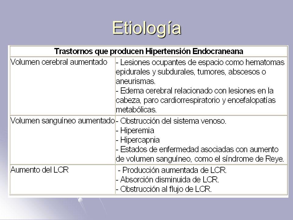 ¿Qué causa la hipertensión intracraneal benigna?