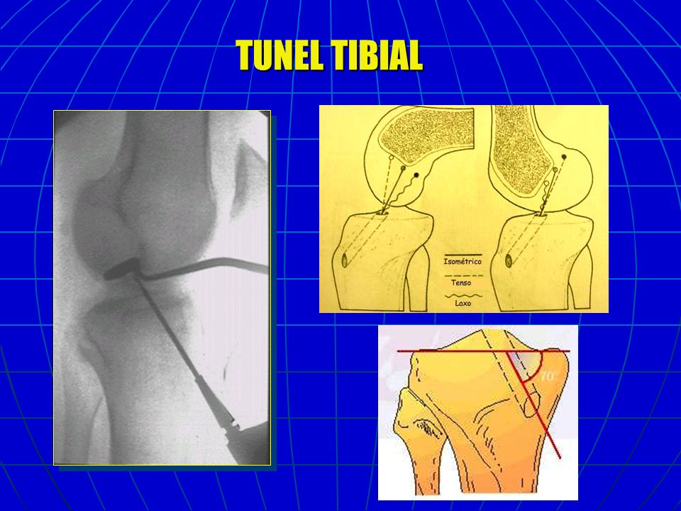 TUNEL TIBIAL