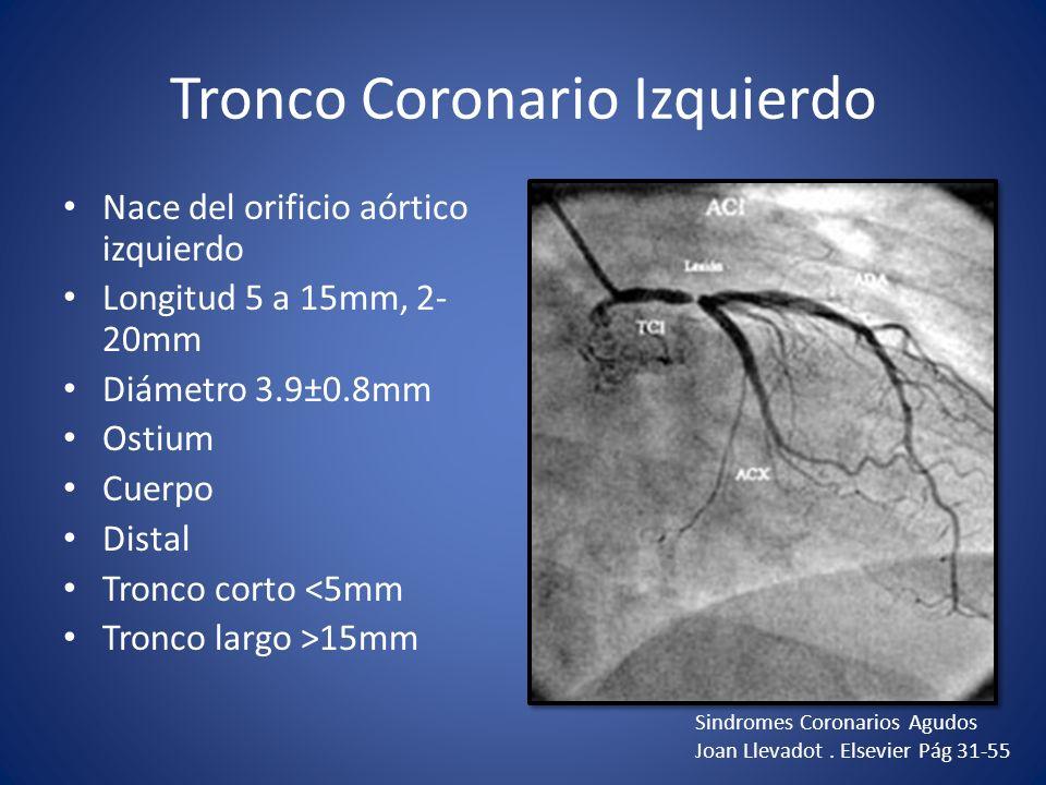 Anatomía Coronaria Dr. Ricardo Gutiérrez Leal - ppt descargar