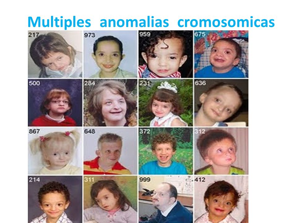 Multiples anomalias cromosomicas