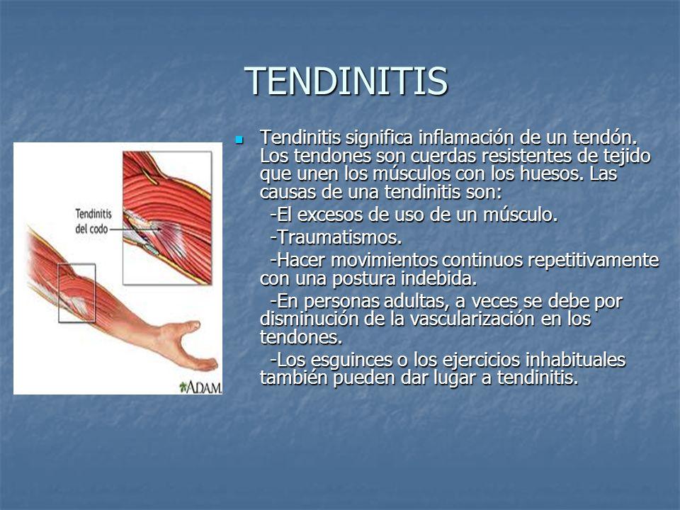 INTRODUCCIÓN La articulación del codo se compone del hueso ...