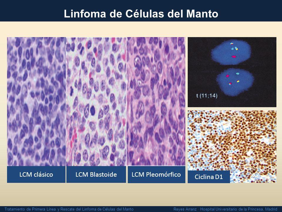 Tratamiento del Linfoma de Células del Manto - ppt descargar b6861eb05cc3c