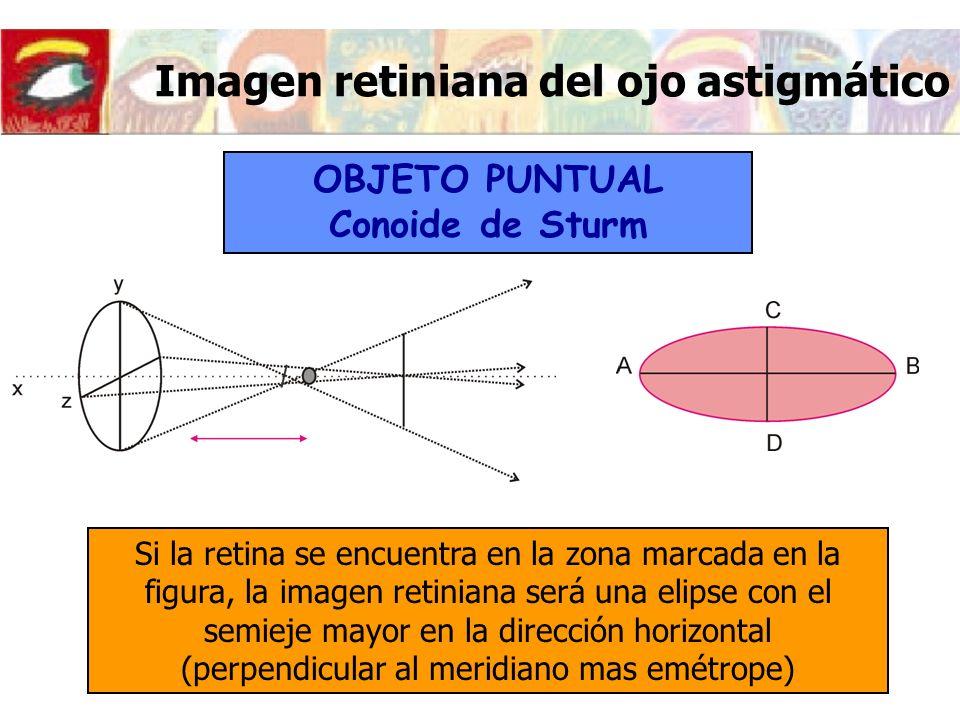 Lujoso Imagen Marcada Del Ojo Colección - Anatomía de Las ...