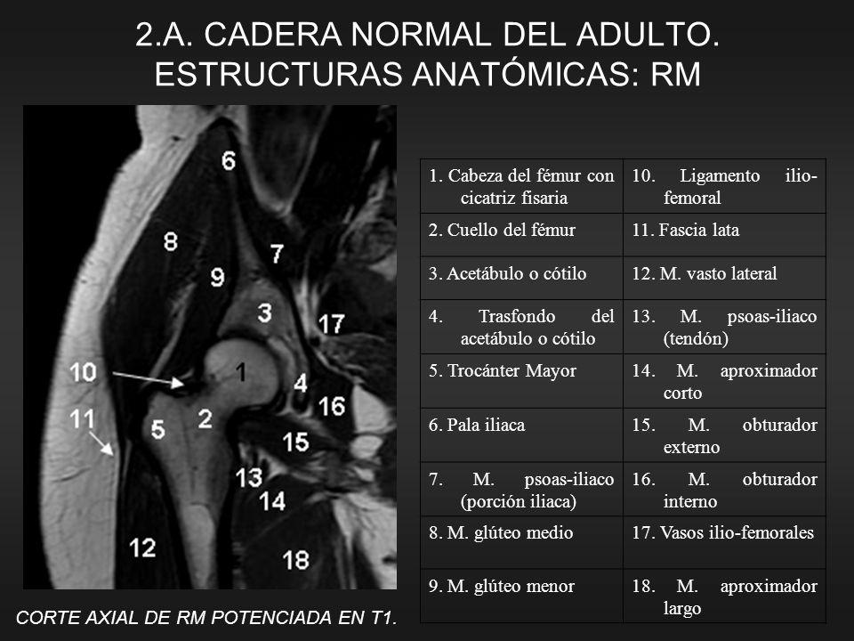 ANATOMÍA RADIOLÓGICA DE LA CADERA: ¿ESTAMOS LOS RADIÓLOGOS ...