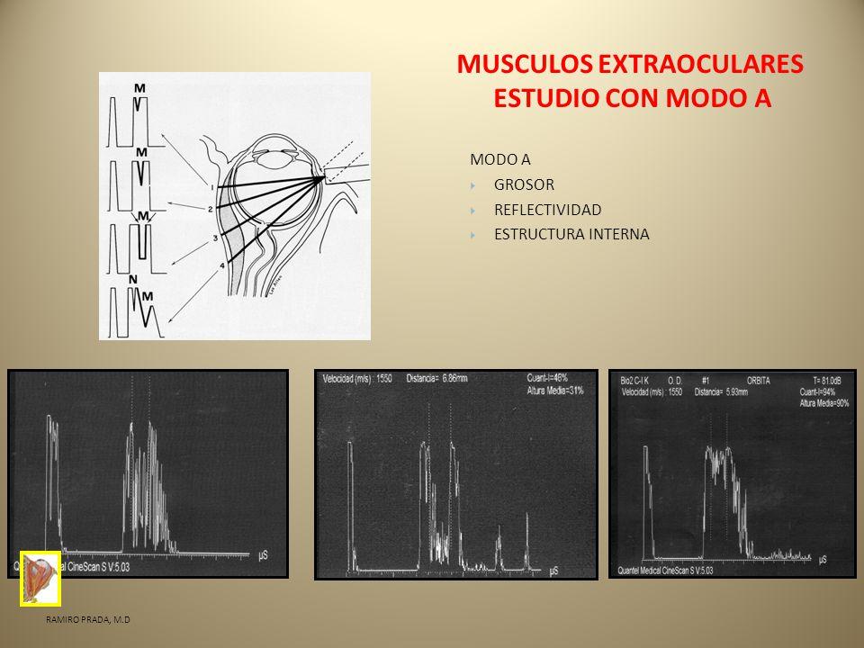 ECOGRAFIA DE MUSCULOS EXTRAOCULARES - ppt descargar