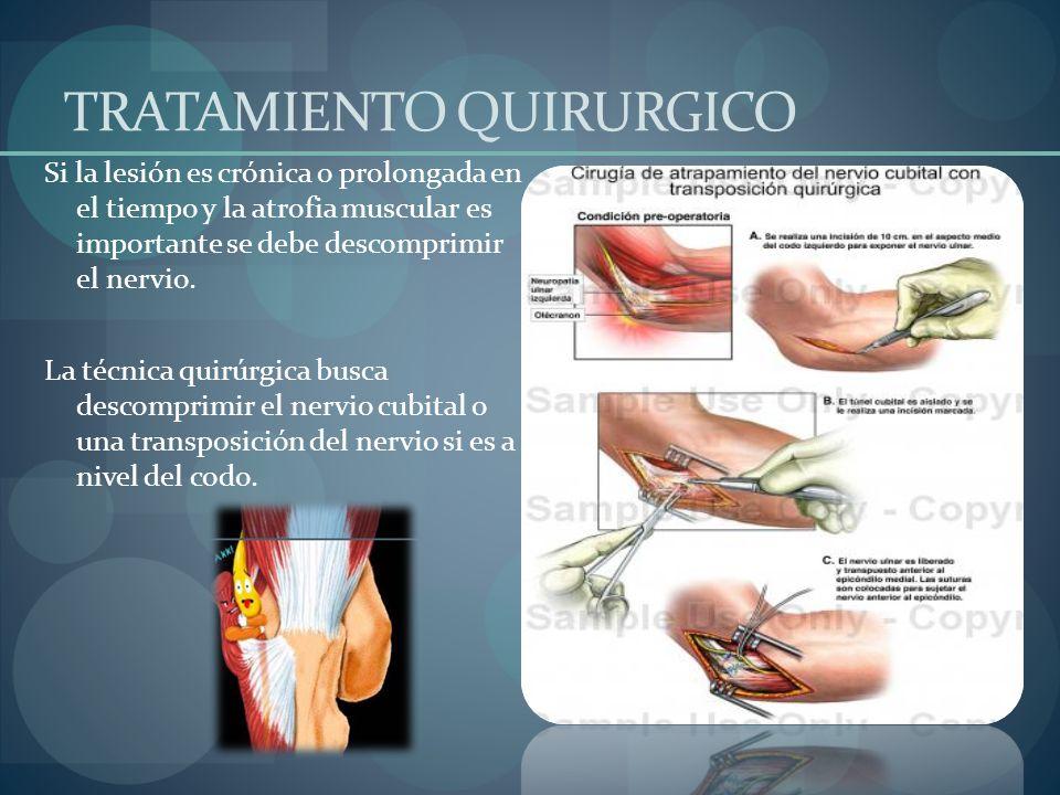 Neuropatía del Nervio Cubital - ppt video online descargar