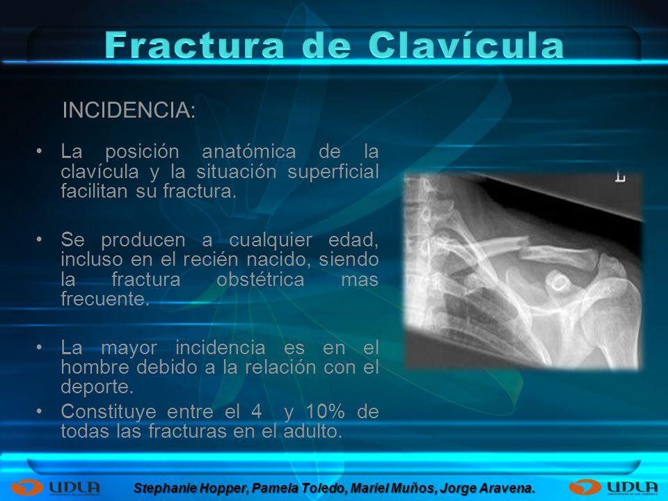 Fractura de Clavícula y Escapula. - ppt descargar 4eb2cd69fe53