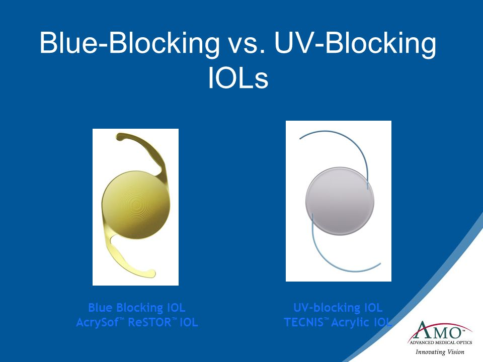 Blue-Blocking vs. UV-Blocking IOLs