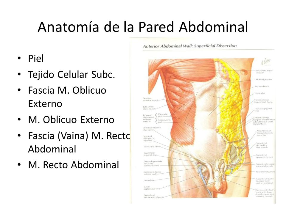 Hernias de la Pared Abdominal - ppt video online descargar