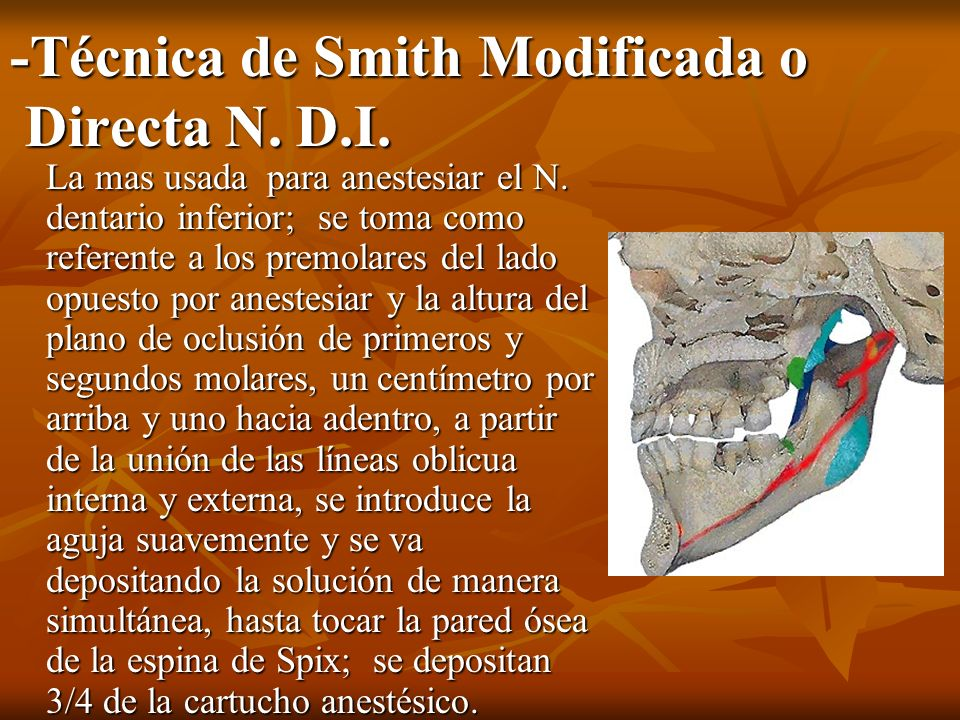 -Técnica de Smith Modificada o Directa N. D.I.