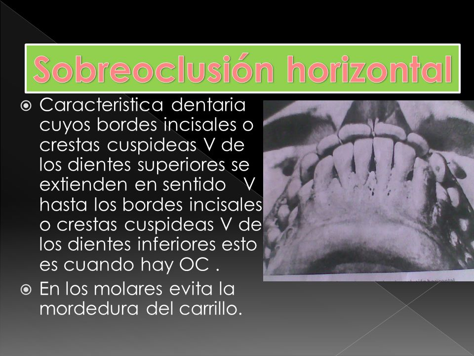 Sobreoclusión horizontal