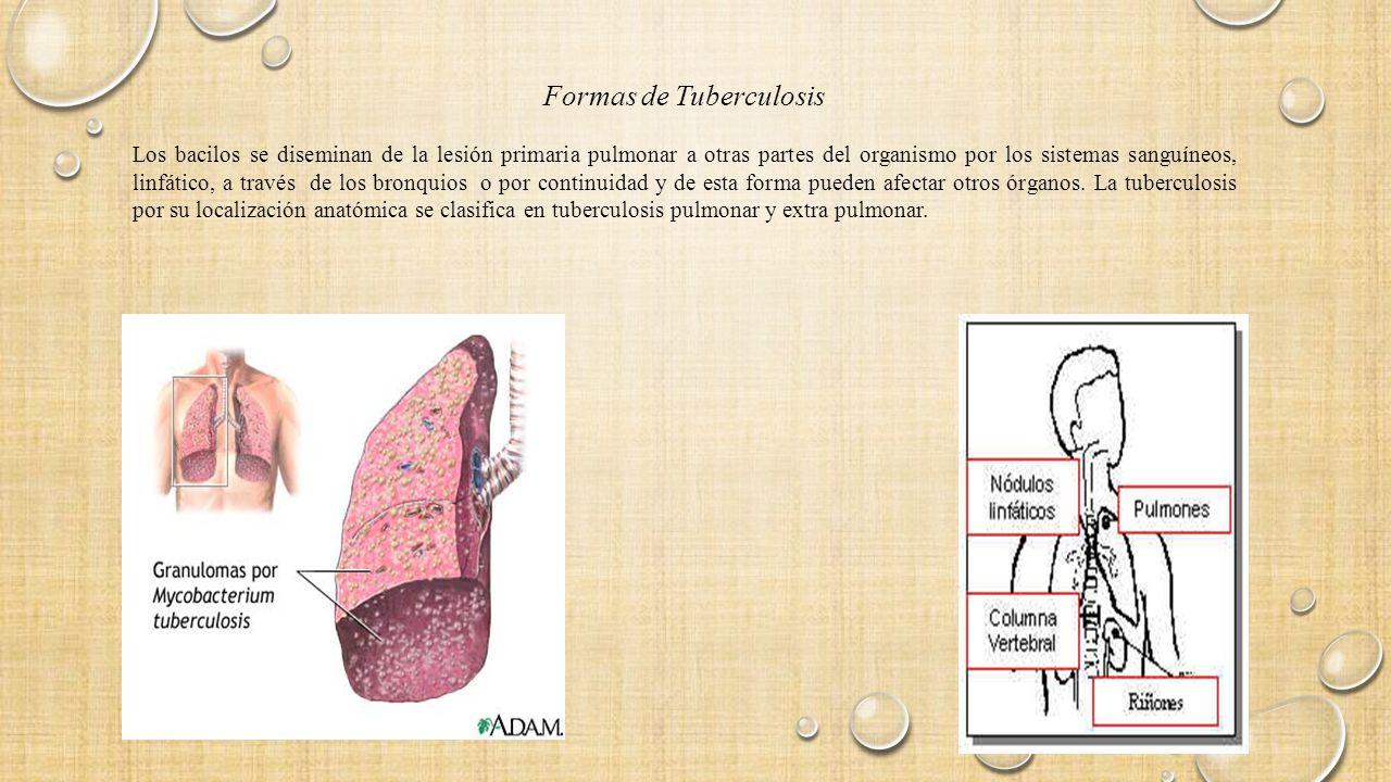 La tuberculosis Vía de Transmisión - ppt descargar