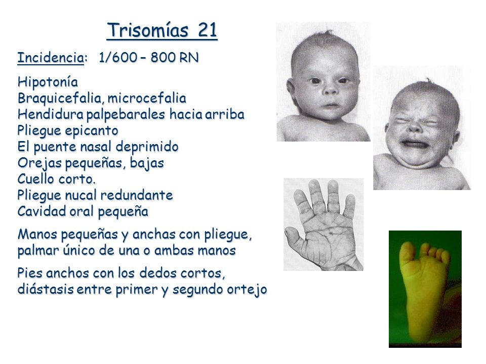 Trisomías 21 Incidencia: 1/600 – 800 RN