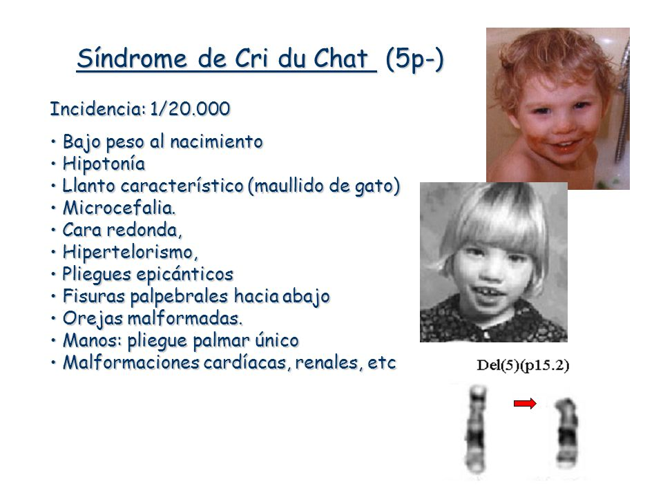 Síndrome de Cri du Chat (5p-)