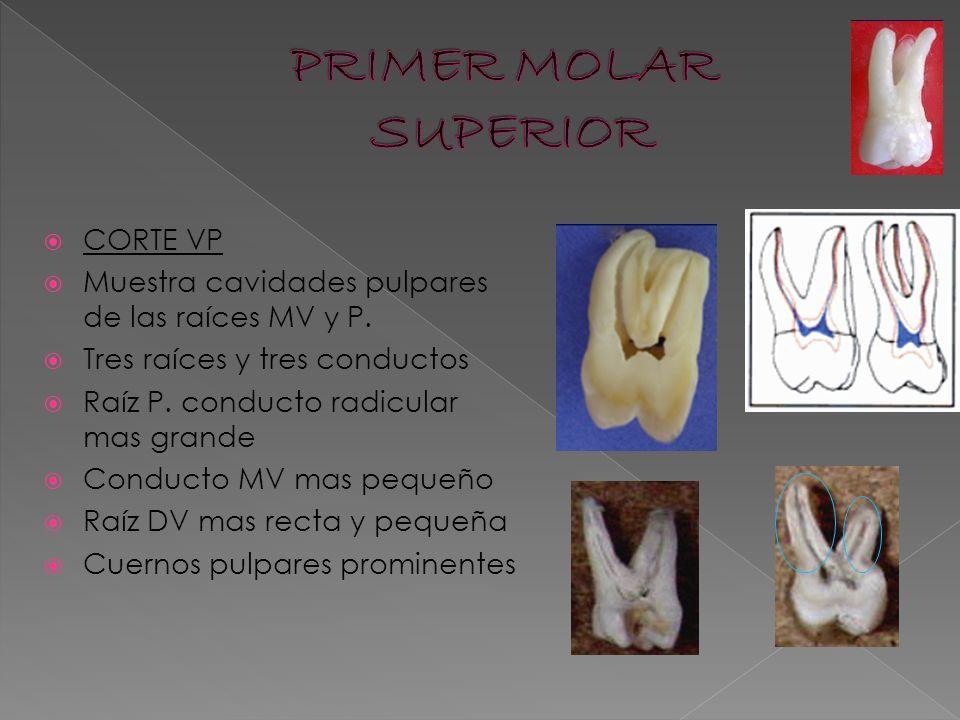 Cavidades pulpares en dientes permanentes - ppt descargar