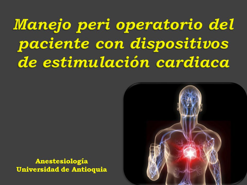Anestesiología Universidad de Antioquia - ppt descargar