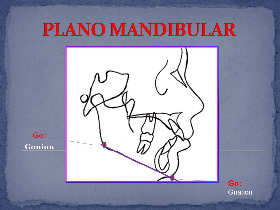 PLANO MANDIBULAR Go: Gonion Gn: Gnation