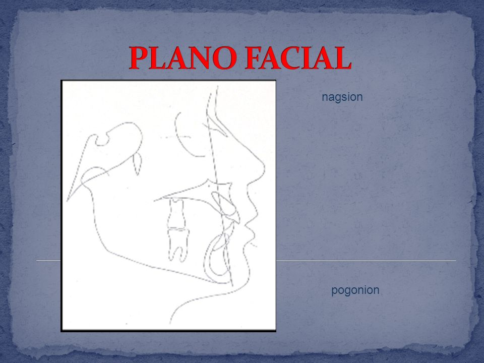 PLANO FACIAL nagsion pogonion