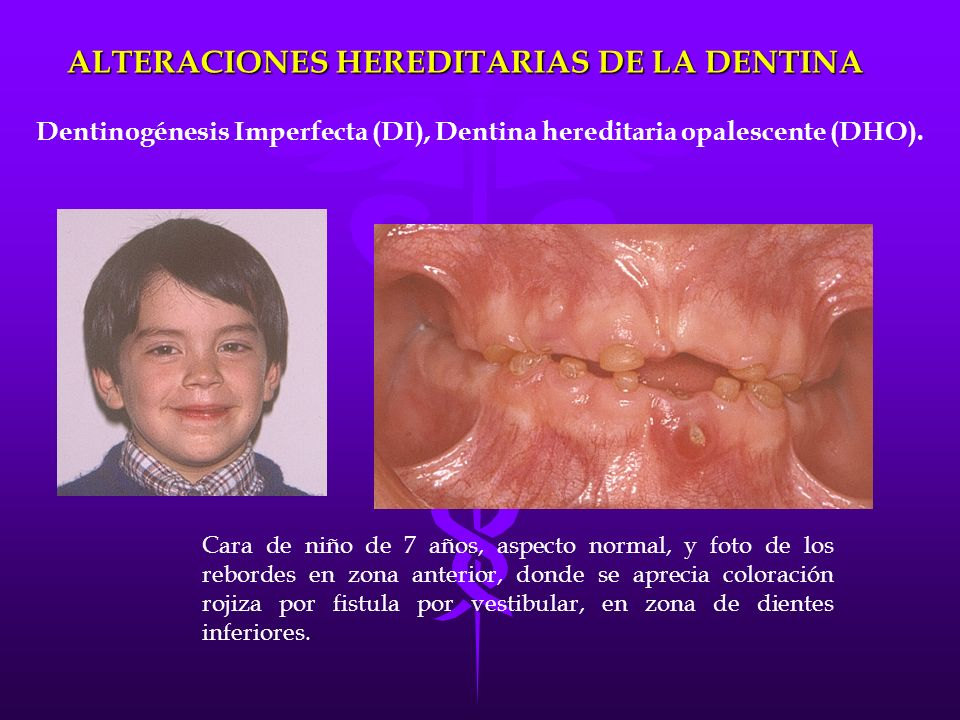ALTERACIONES HEREDITARIAS DE LA DENTINA