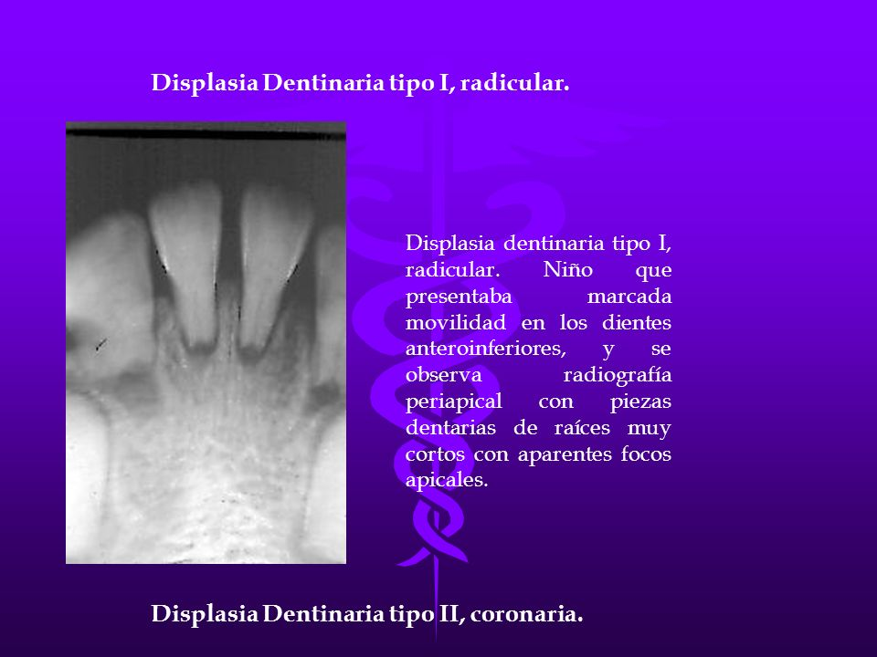 Displasia Dentinaria tipo I, radicular.