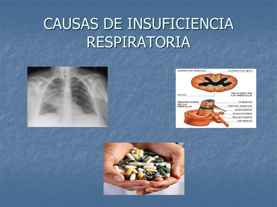 CAUSAS DE INSUFICIENCIA RESPIRATORIA