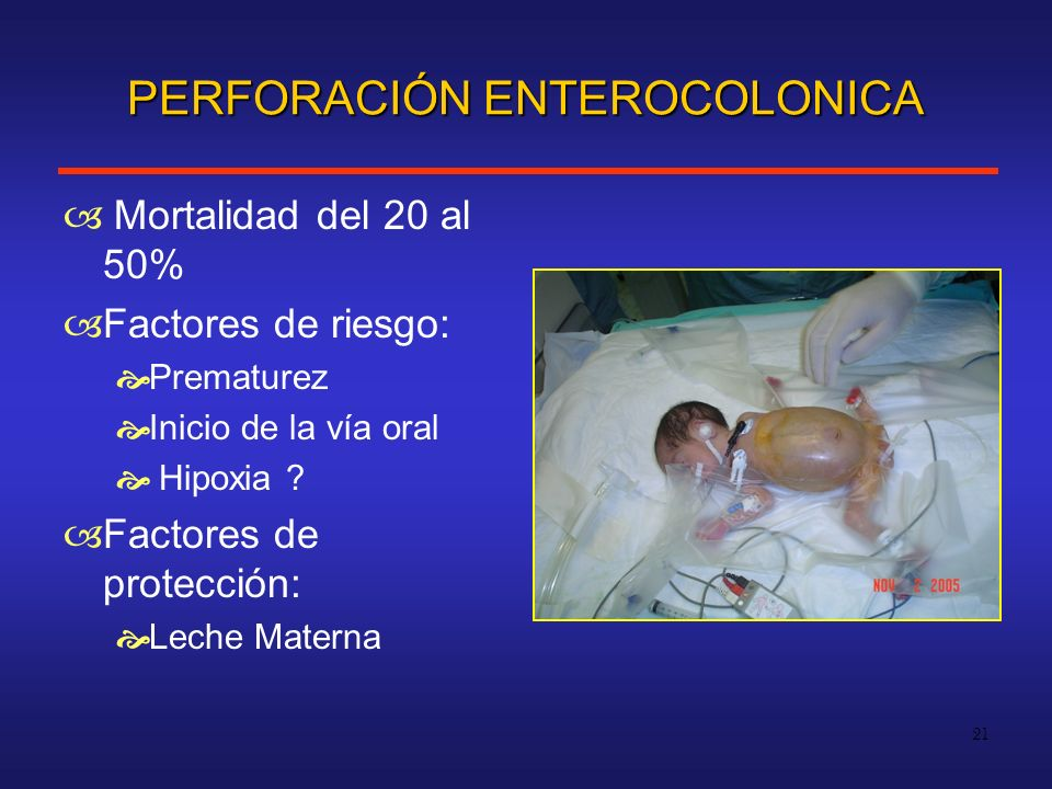 PERFORACIÓN ENTEROCOLONICA