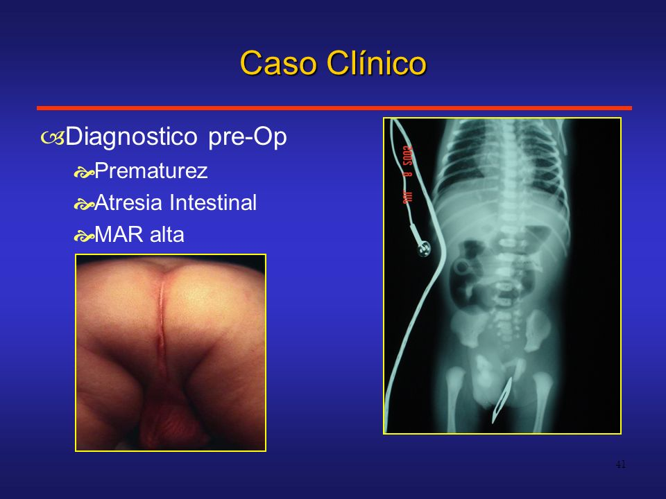 Caso Clínico Diagnostico pre-Op Prematurez Atresia Intestinal MAR alta