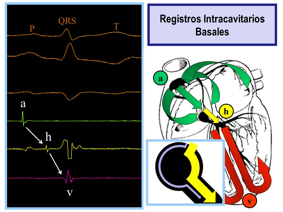 Registros Intracavitarios