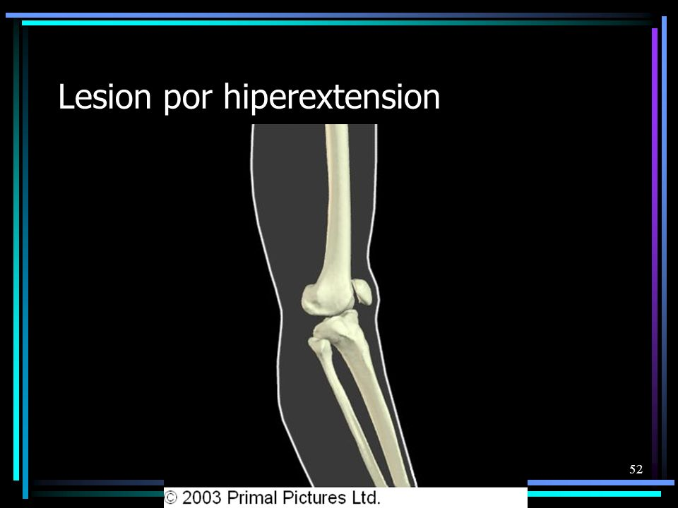 Lesion por hiperextension