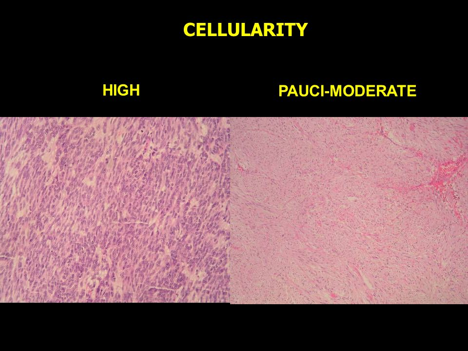 CELLULARITY HIGH PAUCI-MODERATE