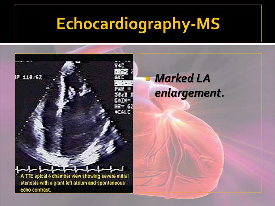 Echocardiography-MS Marked LA enlargement.