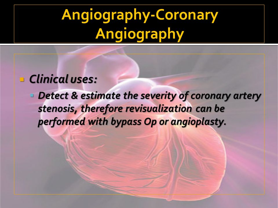 Angiography-Coronary Angiography