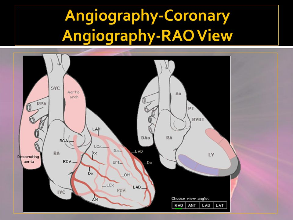 Angiography-Coronary Angiography-RAO View