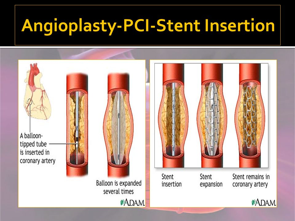 Angioplasty-PCI-Stent Insertion