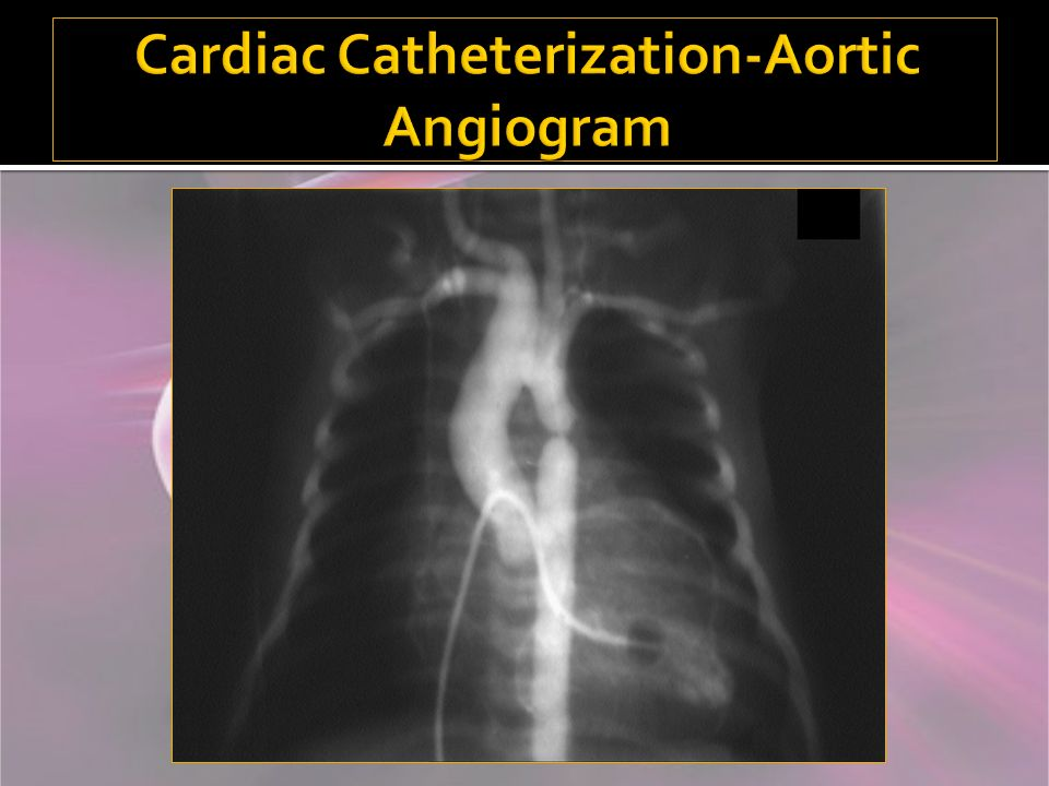 Cardiac Catheterization-Aortic Angiogram
