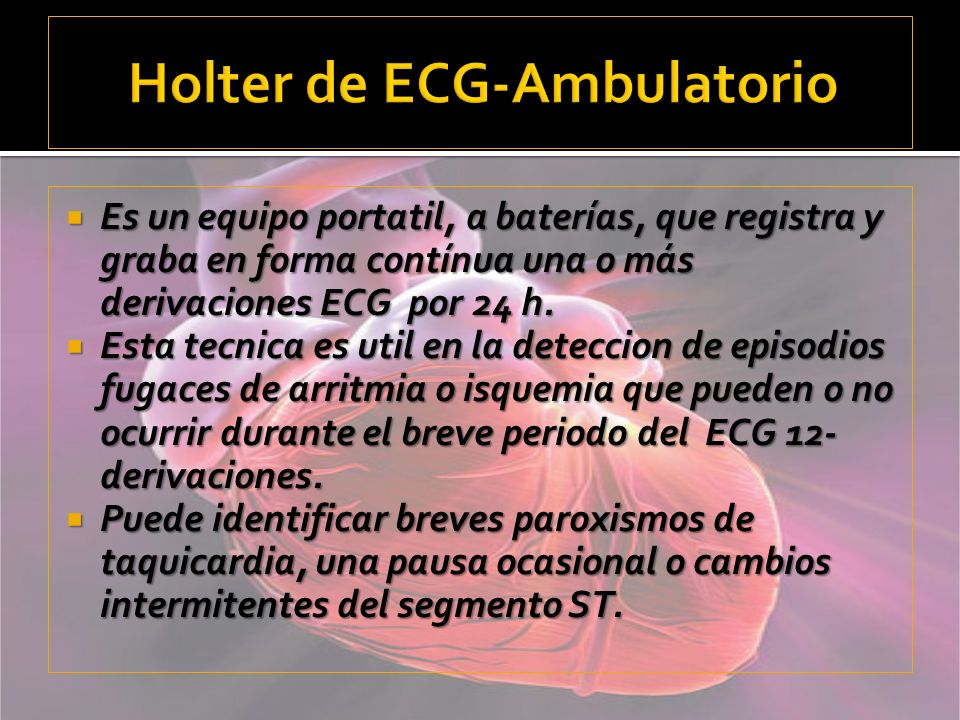 Holter de ECG-Ambulatorio
