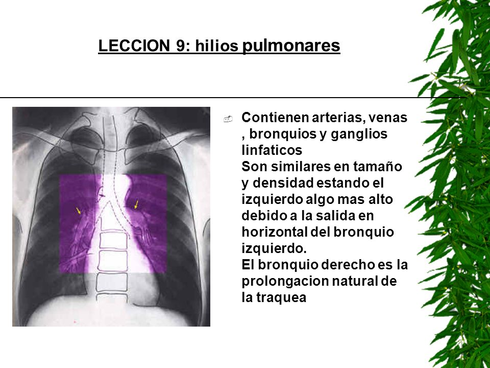 LECCION 9: hilios pulmonares