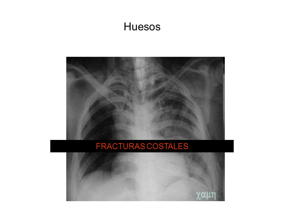 Huesos FRACTURAS COSTALES