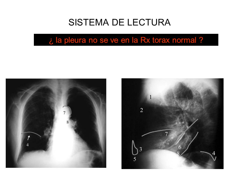 ¿ la pleura no se ve en la Rx torax normal