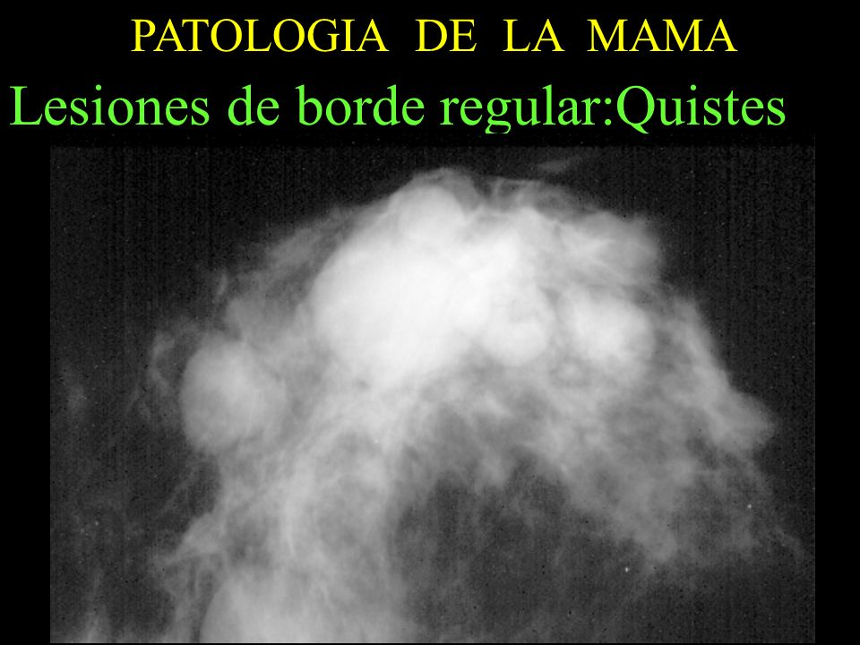 Lesiones de borde regular:Quistes