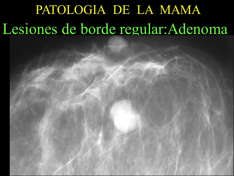 Lesiones de borde regular:Adenoma