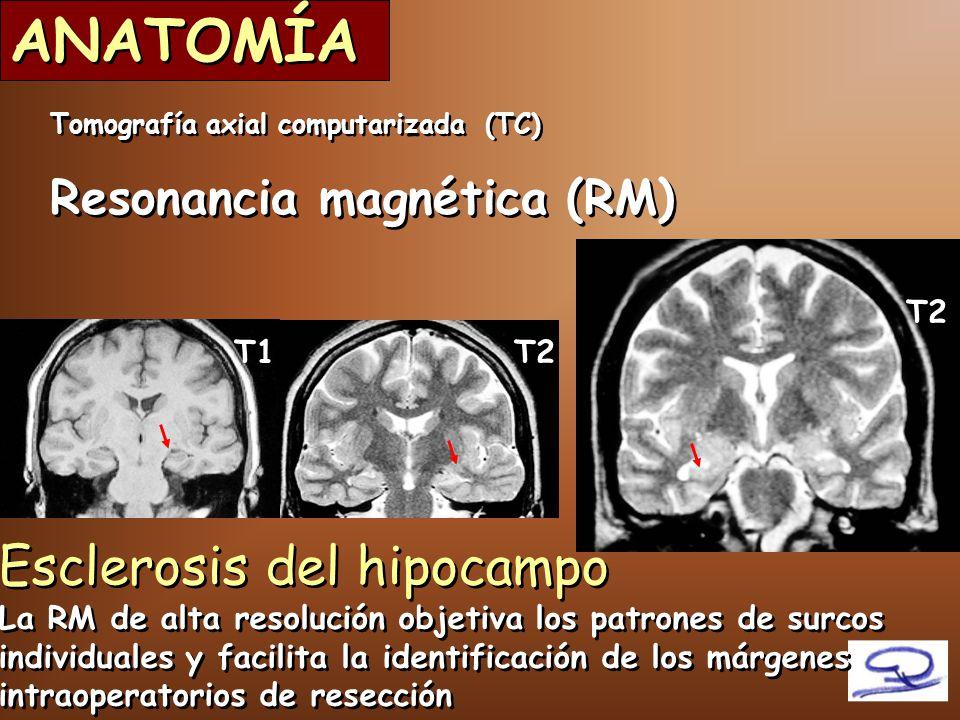 Neuroanestesia (I) Dra.Neus Fàbregas 18/Mayo/ ppt descargar