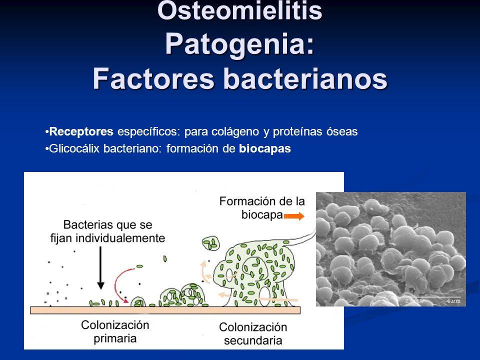 Osteomielitis Patogenia: Factores bacterianos