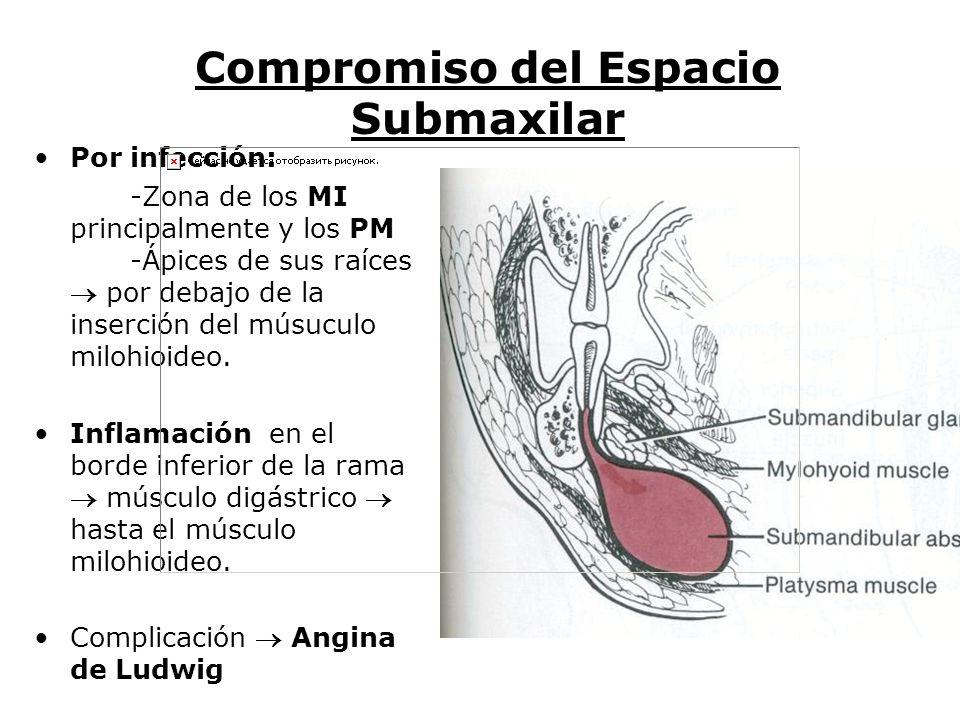 Vías de Diseminación de los Procesos Infecciosos - ppt video online ...