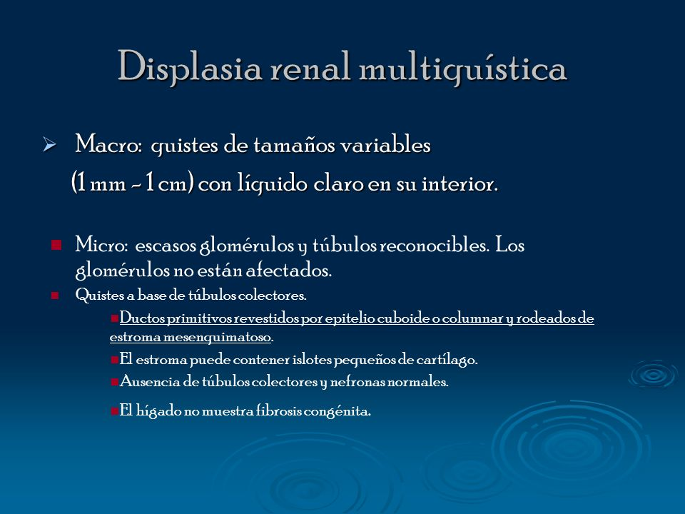 Displasia renal multiquística
