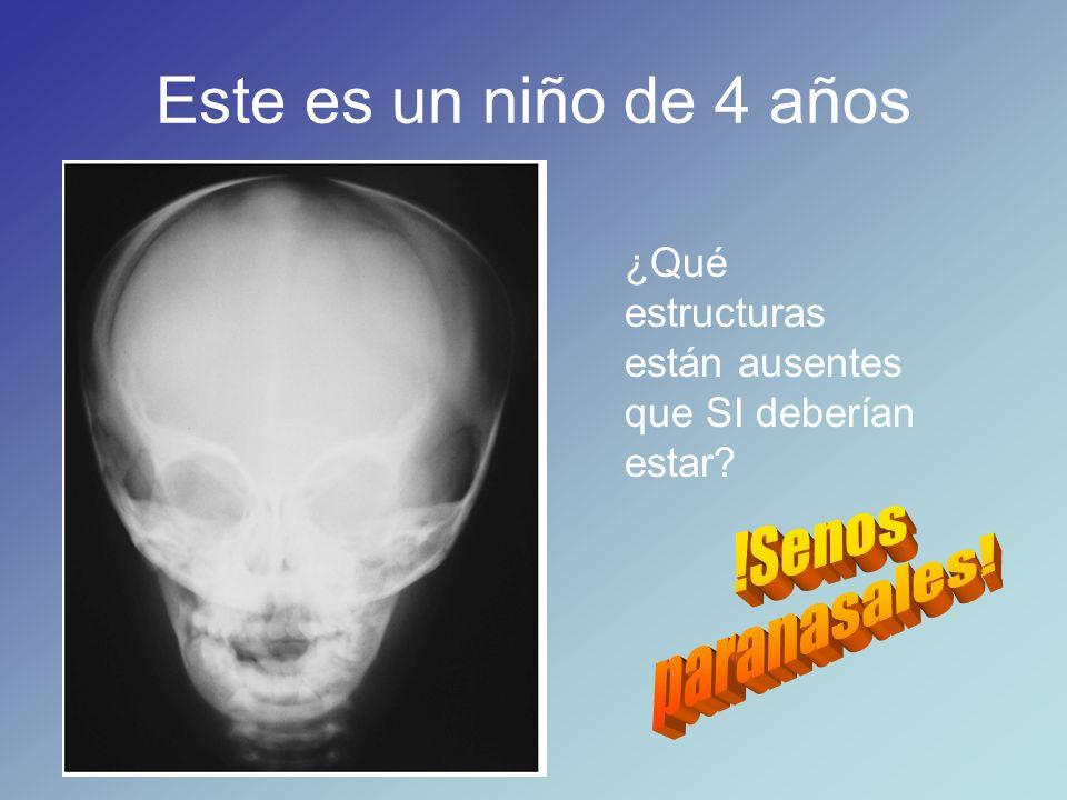 Cráneo y cara: huesos, accidentes óseos, músculos, glándulas ...