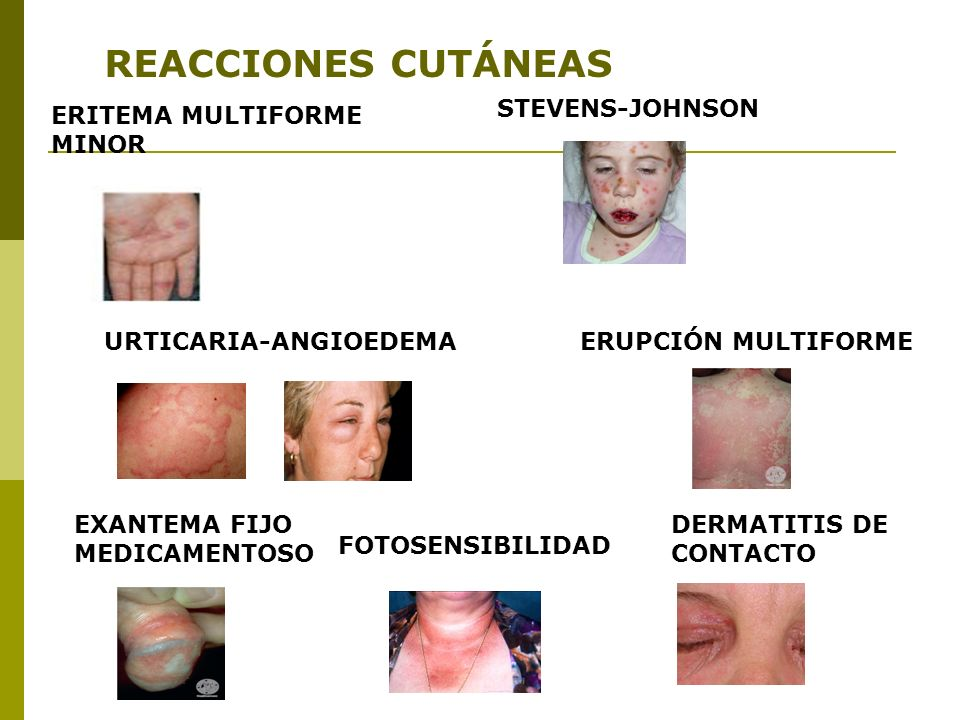 REACCIONES CUTÁNEAS STEVENS-JOHNSON ERITEMA MULTIFORME MINOR