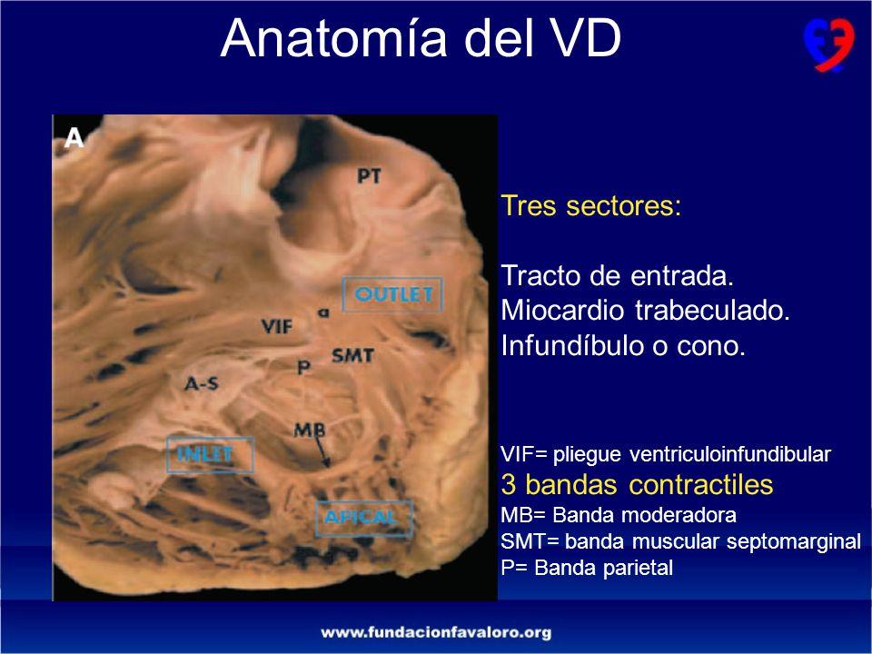 INFARTO DE VENTRICULO DERECHO Ernesto A - ppt video online descargar