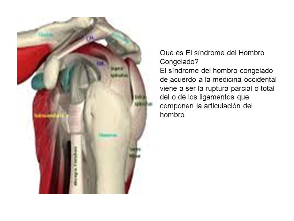 Síndrome de Hombro Congelado Tesina del Diplomado - ppt video online ...